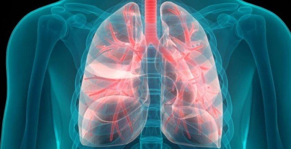 انواع بیماری های ریه و دلایل آنها