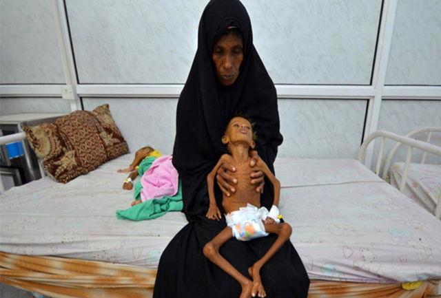 هر 11 دقیقه یک کودک در یمن میمیرد