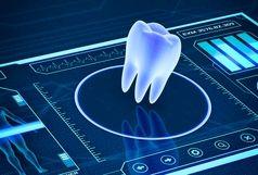 تسهیل  و تسریع مراحل جراحی و پروتز ایمپلت  با استفاده از دندانپزشکی دیجیتال
