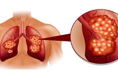 نشانه های هشدار دهنده سرطان ریه را بشناسید!