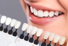 کامپوزیت دندان آری یا خیر؟