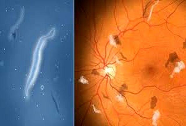همه چیز درباره پدیده مگسپران چشم؛ دلایل، نشانهها و درمان