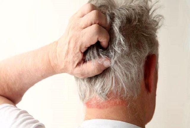 اگر این نشانه ها را دارید سردردتان خطرناک است