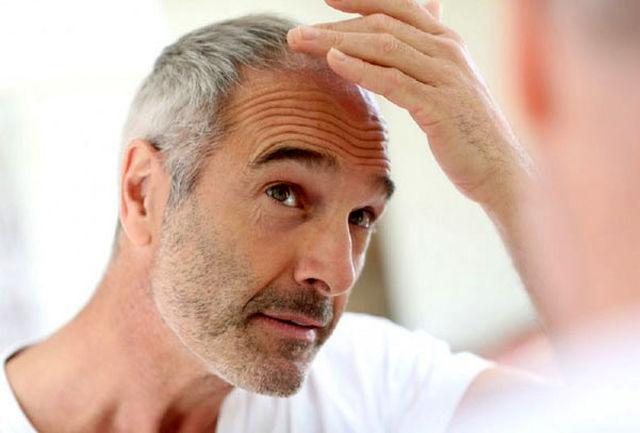 بیماری هایی که مو را تهدید میکنند/ روش های مراقبت و نگهداری
