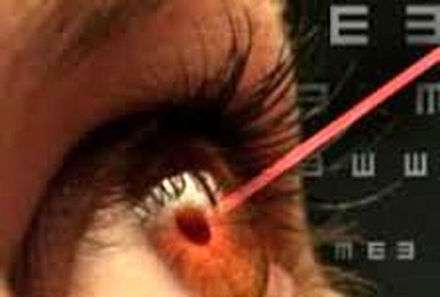 مراقبتهای چشم پزشکی نیازمند پرستار تخصصی است