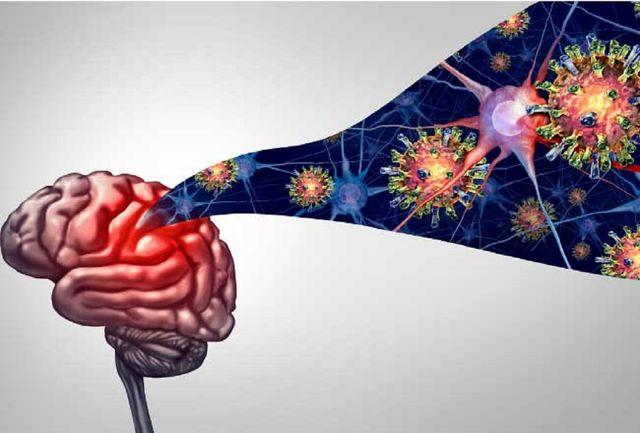 با دردناکترین علایم عصبی ابتلا به کرونا آشنا شوید