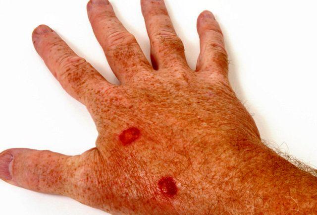 نشانههایی از سرطان پوست که نادیده گرفته میشوند