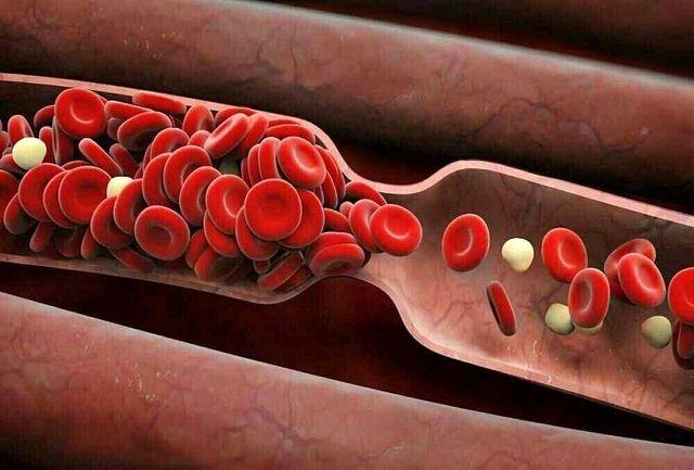 آگر غلظت خون دارید هرگز این غذاها را مصرف نکنید!
