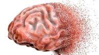آسپرین ریسک آلزایمر را کاهش میدهد؟
