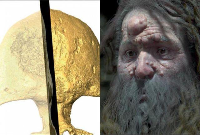 کشف راز حفره در جمجمه انسان کرومانیون/ چهره بازسازی شد