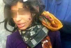 کودکان آزار دیده ماهشهری تحت تکفل قرار گرفتند