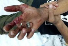 خارج کردن حلقه انگشتری از دست بیمار