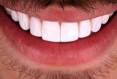 لمینت دندان؛ آری یا خیر ؟