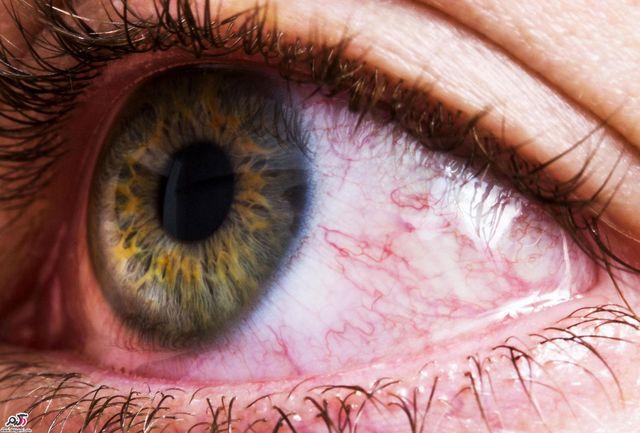 7 بیماری خطرناک که از راه چشم لو میروند