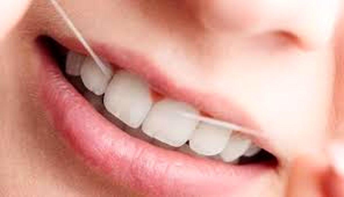 چه مواد غذایی برای سلامت دهان و دندان مناسب است؟