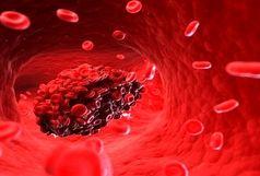 لخته خون در کدام نواحی بدن خطرناک می شود؟