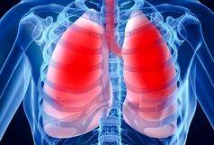 با این دمنوشها ریههایتان را به خوبی پاکسازی کنید