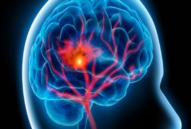 چرا بیماران کرونایی در ICU سکته مغزی می کنند؟