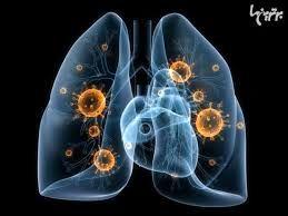 کشنده ترین بیماری عفونی چیست؟