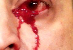 این مرد به طرز وحشتناکی خون گریه میکند! + عکس