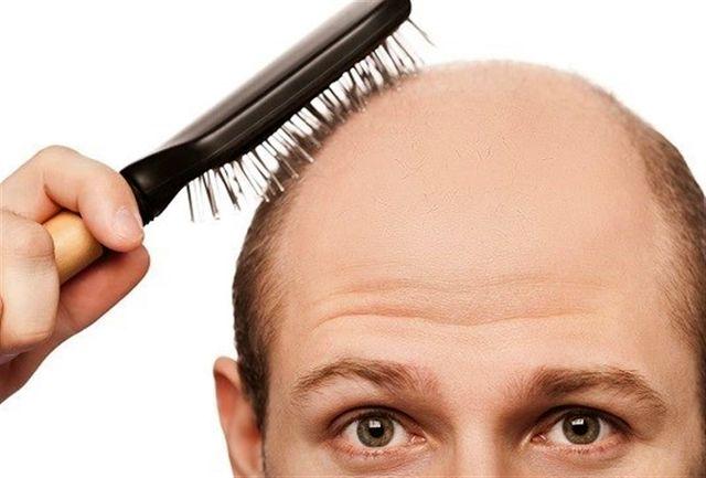 کشف جدید محققان ژاپنی درباره دلیل ریزش مو