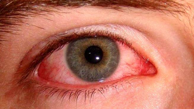 اهمیت توجه به بیماریها چشم در ایام کرونا/ ضرورت رعایت پروتکلهای بهداشتی