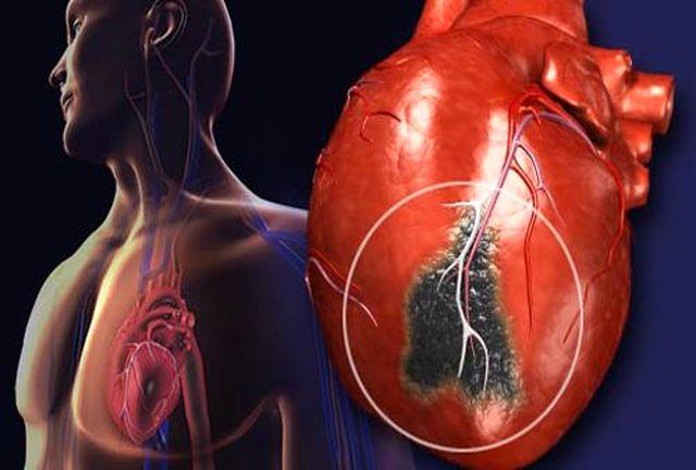 تفاوت علائم سکته قلبی در مردان و زنان