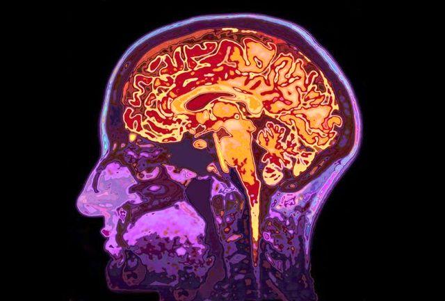 چگونه از مغزمان محافظت کنیم؟