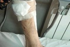 حمله شغال و زخمی شدن چند نفر در صومعه سرای گیلان