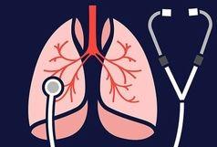 چند توصیه مهم برای مراقبت از ریهها در این روزها