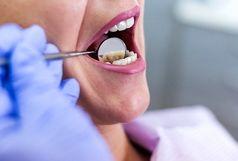 واقعیتهایی خطرناک درباره عفونت دندان ها