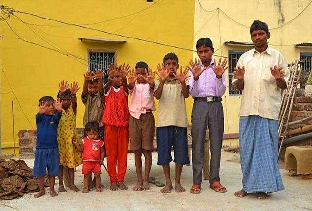 جهش ژنتیکی 100 انگشت به خانوادۀ هندی اضافه کرد!