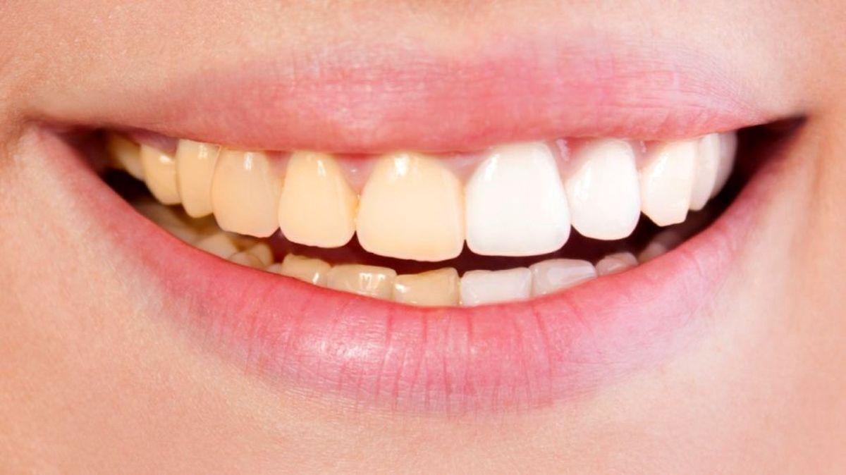 چه بخوریم تا دندان هایی تمیز داشته باشیم؟