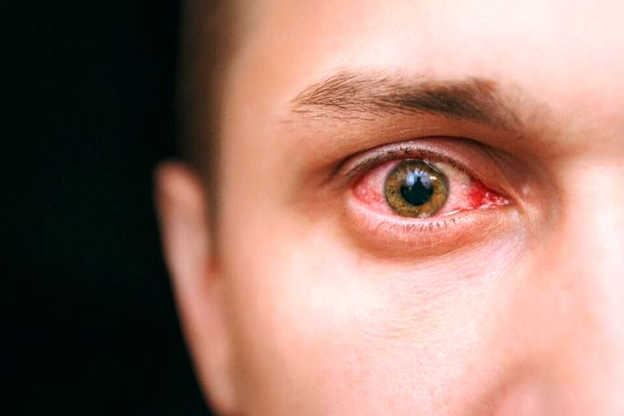 نشانههای هشدار دهنده از چشم
