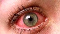 رازهایی که لکههای قرمز داخل چشم بر ملا میکنند