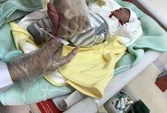 شناسایی 1500 نوزاد مشکوک به عقب ماندگی ذهنی فقط در فارس