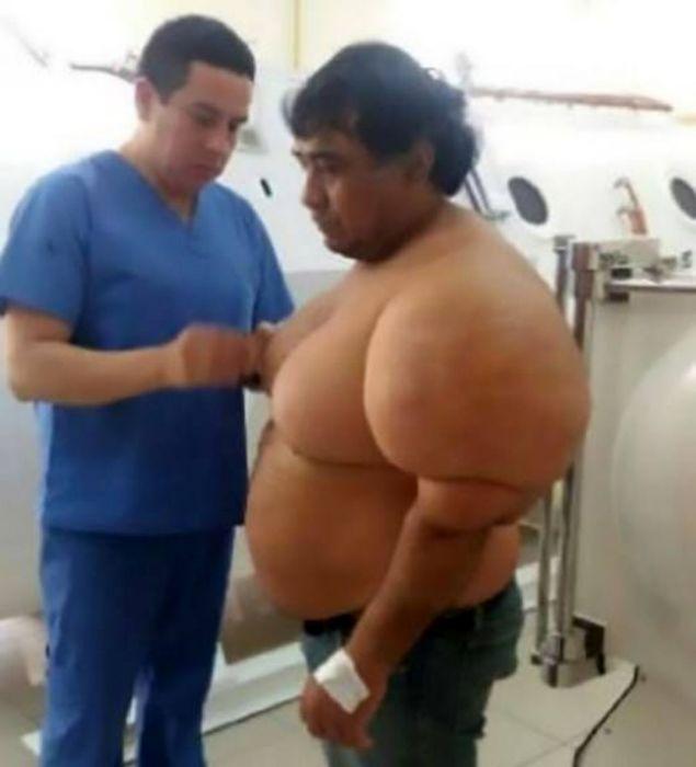 بیماری عجیبی که سایز این مرد را یک دفعه دوبرابر کرد+عکس